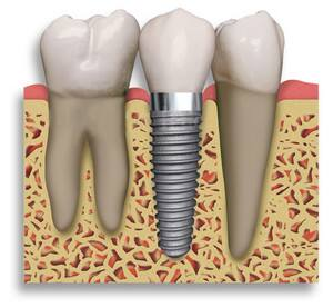 leading tooth implants