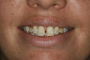 TrueLocal: Smile Concepts Image - porcelain veneers 1 before