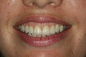 True Local: Smile Concepts Image - porcelain veneers 1 after