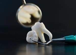Chermside Dental Care Pic 3 - Affordable Wisdom Tooth Removal in North Brisbane