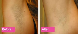 Essence Medispa Pic 2 - IPL Hair Removal
