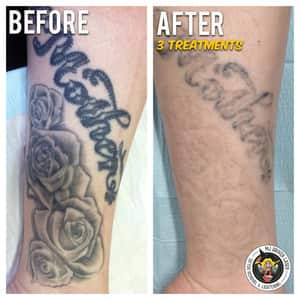 MJ Driver Laser Tattoo Removal & Lightening - MELBOURNE Pic 5