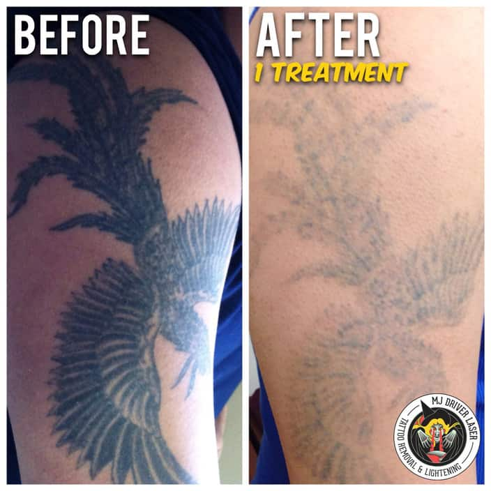MJ Driver Laser Tattoo Removal & Lightening - MELBOURNE Pic 1