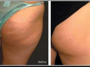 Laila's Beauty & Laser Pic 2 - Vela Smooth cellulite reduction and skin firming toning and reshaping