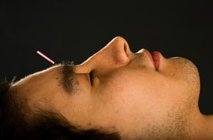 Sunny Lily Acupuncture Pic 4 - chronic fatigue