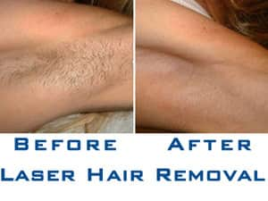 Nitai Medical and Cosmetic Centre Pic 3 - Laser Hair removal in Melbourne