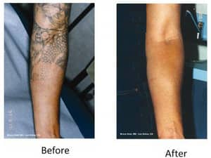 Nitai Medical and Cosmetic Centre Pic 4 - tattoo removal in Melbourne